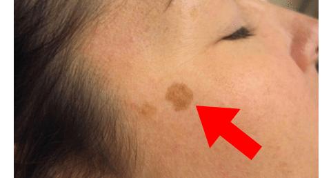 Macchie marroni della pelle addio: da oggi le puoi finalmente eliminare