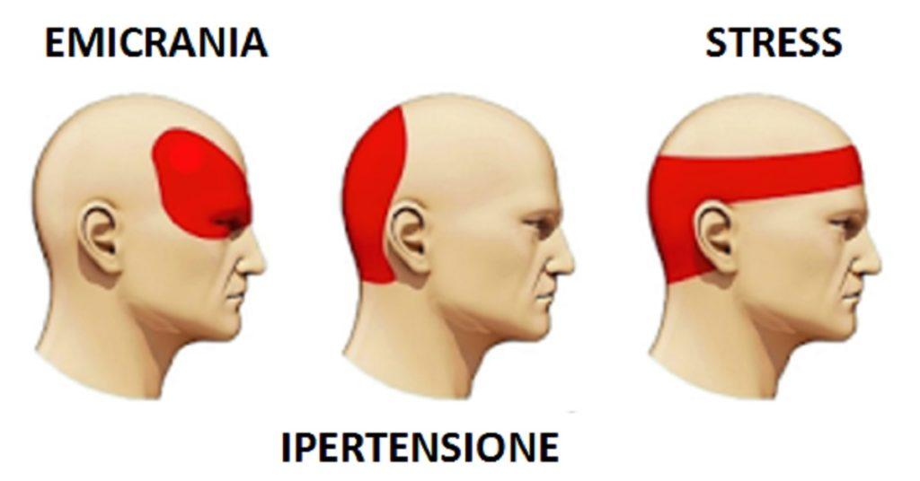 Mal di testa e emicrania: Quali sono i sintomi e le cause?
