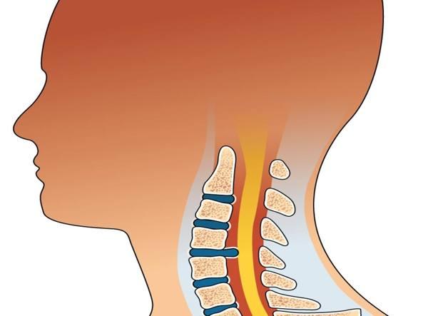 10 sintomi per riconoscere il dolore cervicale e curare l'infiammazione!