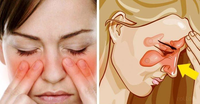 Sinusite acuta e cronica: Tutti i sintomi e le cause da non sottovalutare!
