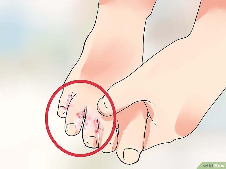 10 Rimedi naturali per trattare ed eliminare il piede d'atleta