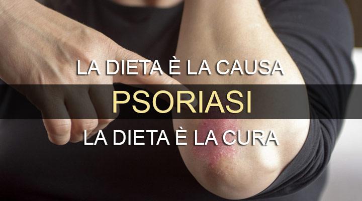 Psoriasi: Cure naturali e alimenti benefici nella dieta per ridurre i sintomi