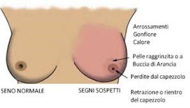 papilloma intraduttale e allattamento papillom mandel entfernen