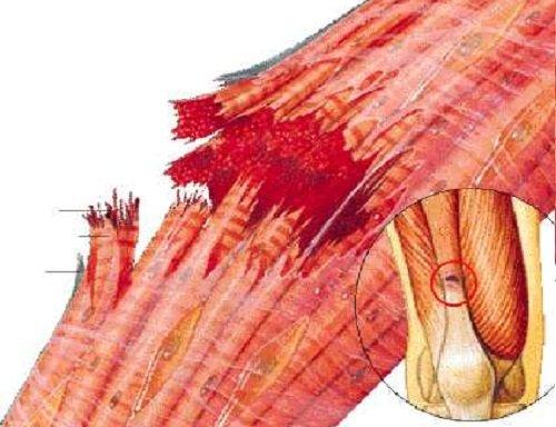 Strappo muscolare: 4 Modi per trattarlo e come accelerare..