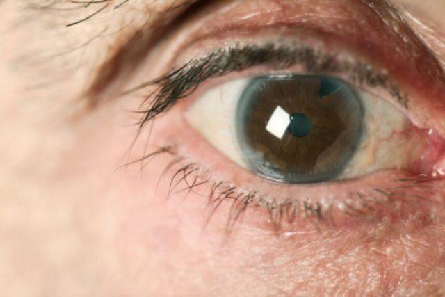 glaucoma rimedi