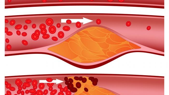 Colesterolo HDL: 6 Alimenti per favorire l'aumento del colesterolo buono