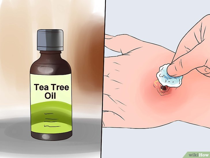 Tea tree oil: 14 disturbi che puoi trattare con quest'olio dai mille benefici!