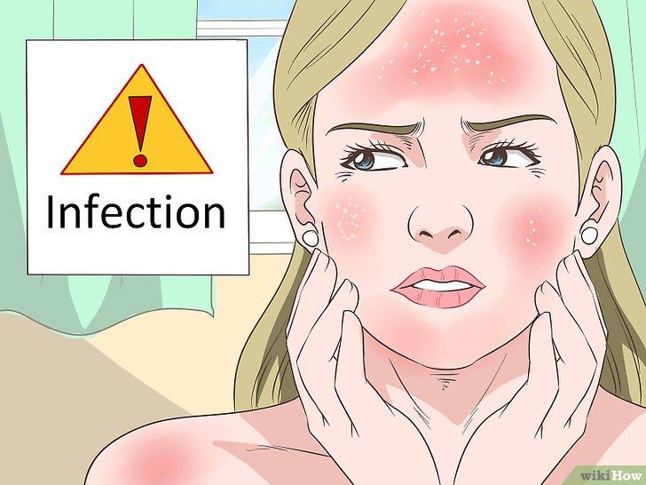 Eritema solare: 7 rimedi casalinghi per alleviare ed eliminare i sintomi