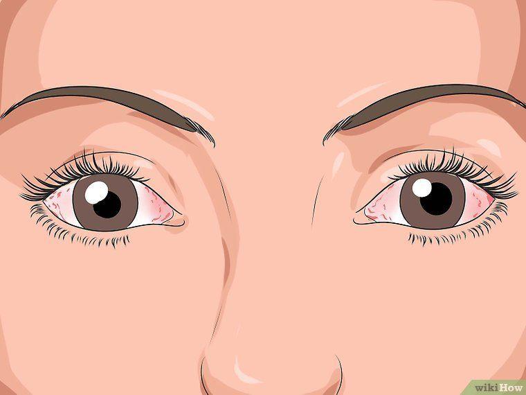 Occhi rossi: 5 Cause comuni e come trattarli con questi 6 rimedi a casa