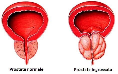 Prostata ingrossata: Sintomi, trattamento e 4 rimedi per curarla