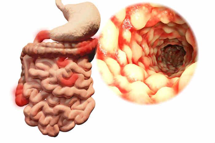 Morbo di Crohn: 13 Sintomi che lo identificano e tutte le cure per la malattia