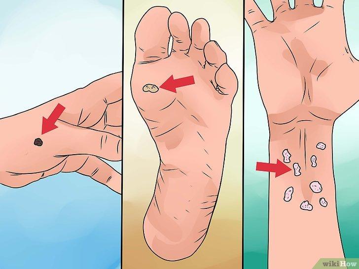 Verruche, addio! Ecco 4 rimedi da provare per rimuoverle senza dolore