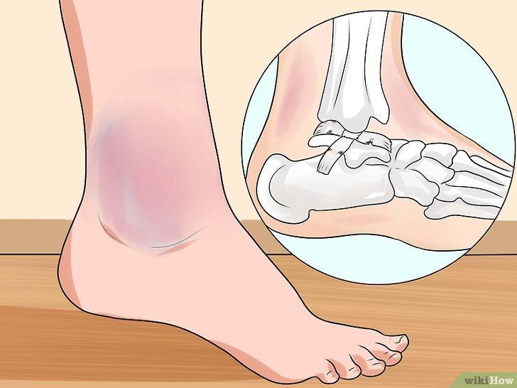 Distorsione alla caviglia? Ecco 6 rimedi per trattare il dolore e gonfiore