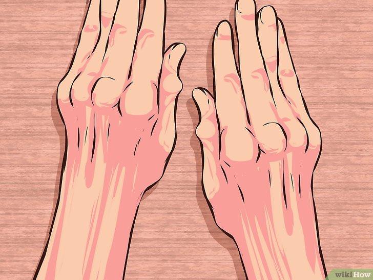 Artrite reumatoide: Sintomi per riconoscerla e 6 rimedi per trattare il dolore