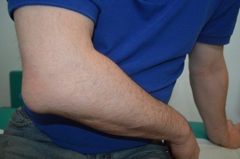 Borsite: 5 rimedi efficaci e sicuri per ridurre il dolore e gonfiore
