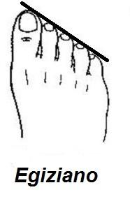 piede egiziano
