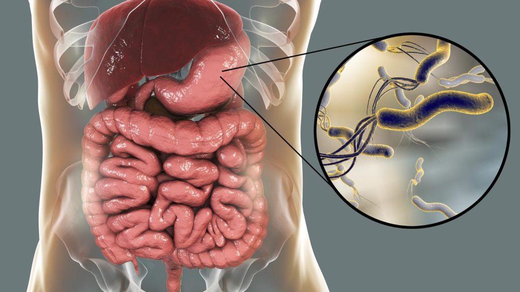 Helicobacter pylori: Come combattere l'infezione con questi 6 rimedi