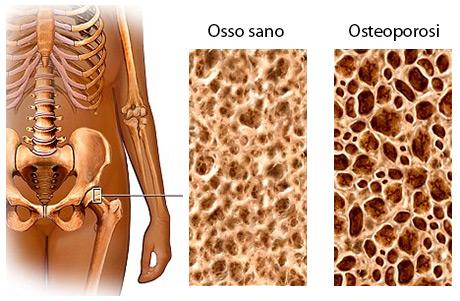Osteoporosi: Come ridurre i sintomi con questi rimedi e utili consigli