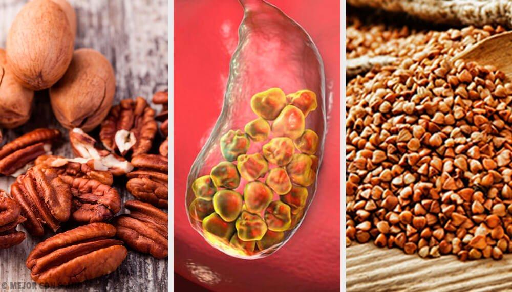 Calcoli biliari: Quali sono i sintomi e gli alimenti che aiutano ad eliminarli?