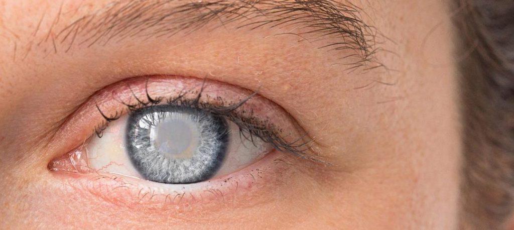 Cataratta: Primi Sintomi per riconoscerla e 4 rimedi per stare meglio