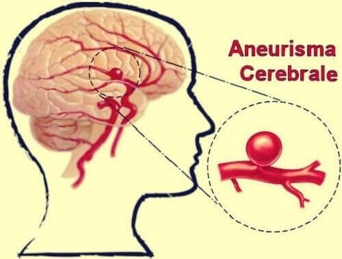 Aneurisma cerebrale: Quali sono tutti i sintomi iniziali e le conseguenze?