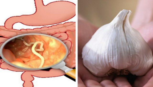 Vermi intestinali - Rimedi