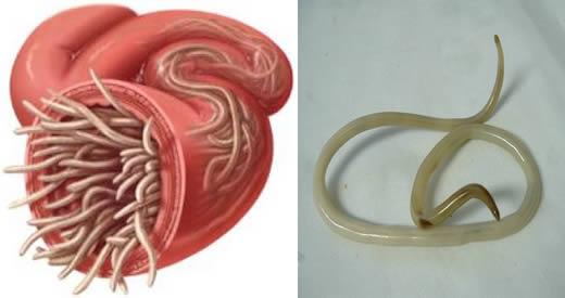Vermi intestinali: Sintomi, Cause e 5 Rimedi che ti aiuteranno ad eliminarli!
