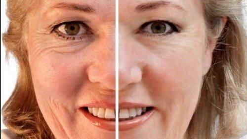 Connettivina: la crema più usata dai chirurghi per eliminare le rughe di cui nessuno parla. Forse perché costa poco?