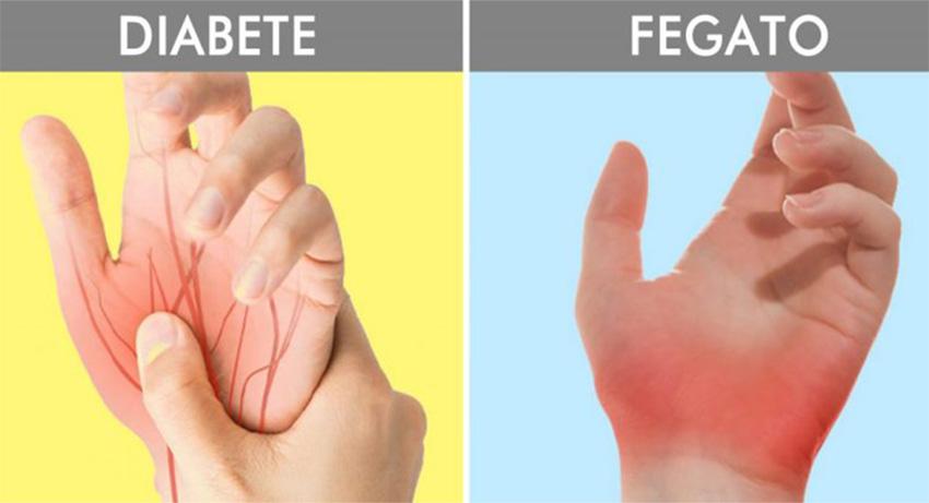 Tremori e formicolio alle mani? 8 sintomi di malattie che si vedono dalle mani