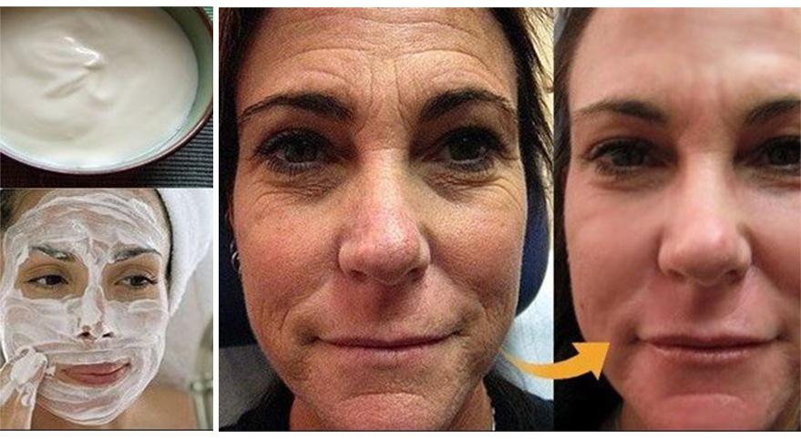 2 ingredienti per preparare una crema viso con effetto botox a casa!