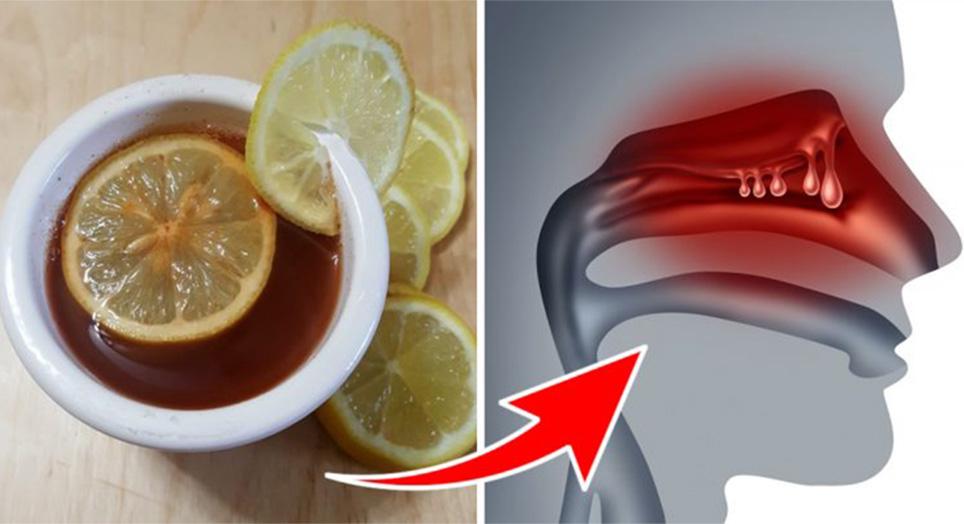 4 ingredienti per sciogliere muco e catarro ed eliminare la congestione in poco tempo
