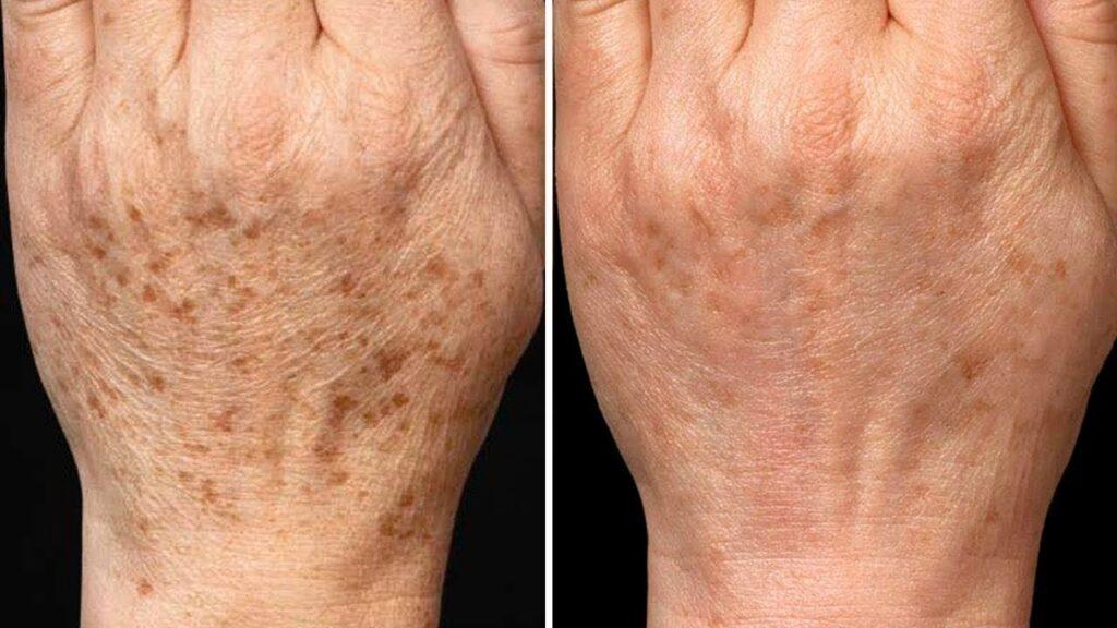 7 trucchi per eliminare le macchie scure della pelle in modo naturale