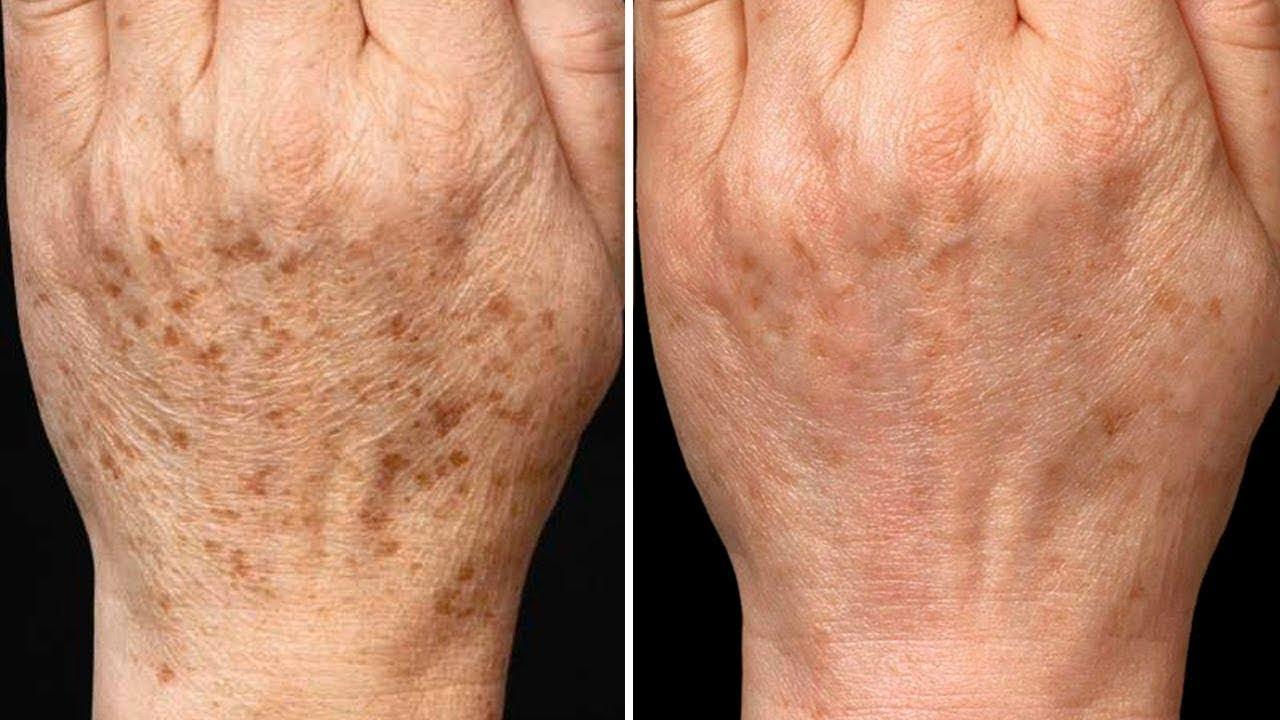Come eliminare le macchie scure della pelle in modo naturale