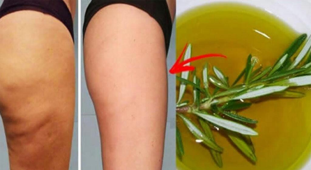 L'alcool al rosmarino, 2 soli ingredienti per combattere cellulite e vene varicose