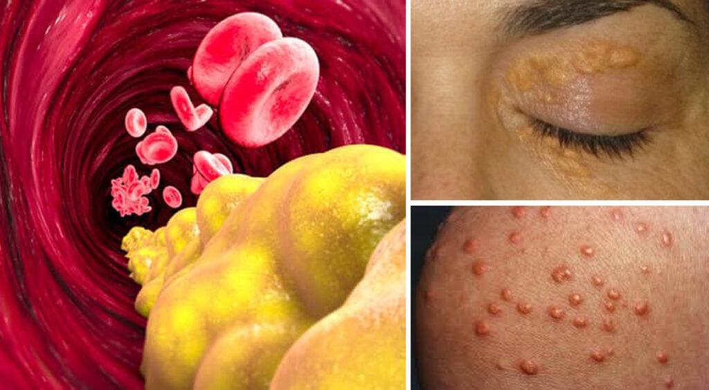 3 segnali che indicano livelli di trigliceridi alti nel sangue e come abbassarli