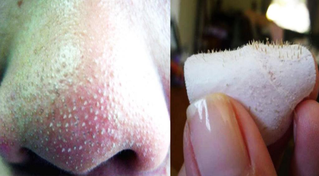 Come eliminare i fastidiosi punti neri sul naso e viso in 3 semplici mosse!