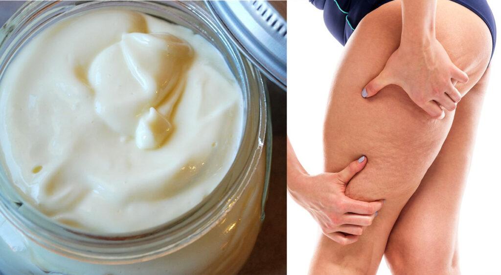 Le 5 migliori creme anticellulite per eliminare il grasso dalle gambe