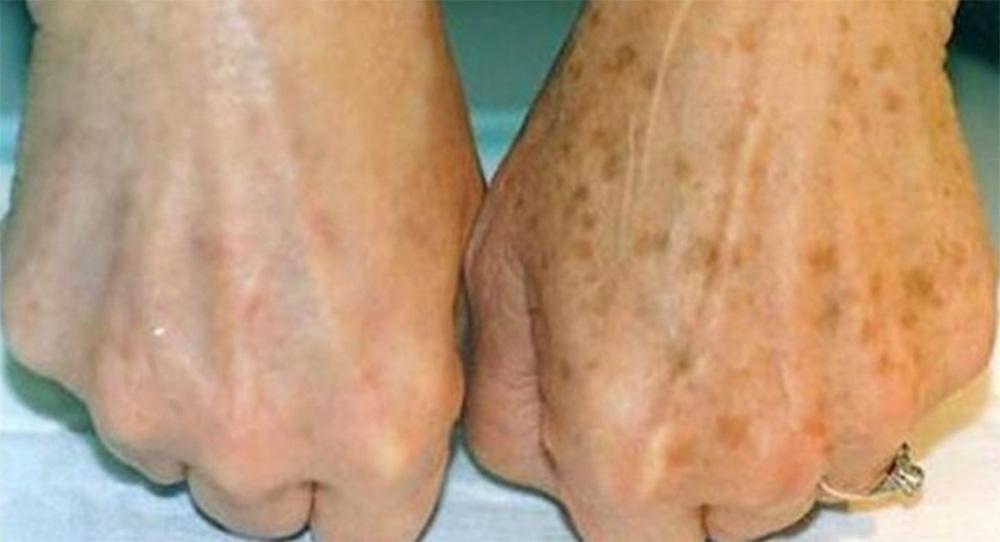 La crema che aiuta a schiarire le macchie sulla pelle in modo naturale