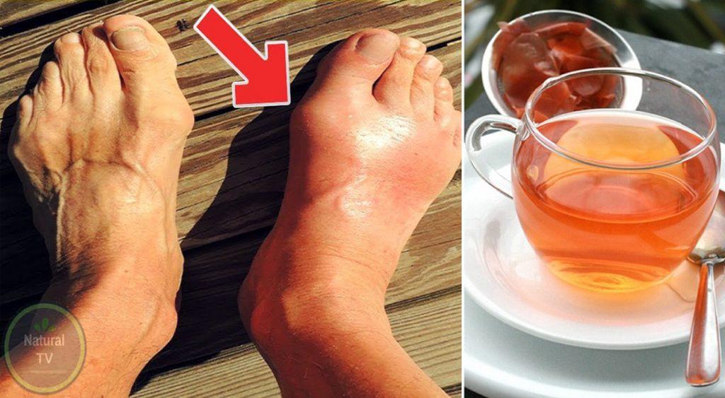 Acido urico alto? 5 tè da bere per eliminare l'accumulo dal corpo