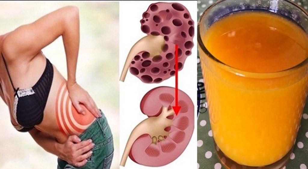 Come disintossicare i reni? Bevi questo succo, si prepara in 1 minuto!