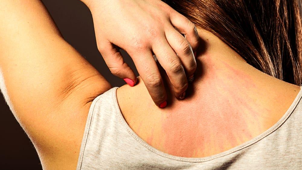 La schiena ti prude spesso? 4 motivi e cosa dovresti fare per eliminare il fastidio